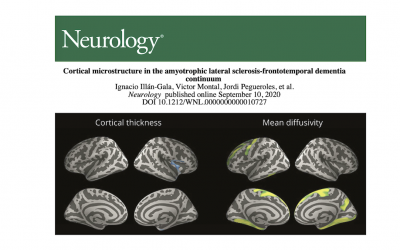 Overlapping microstructural changes in the brain of patients with ALS and frontotemporal dementia