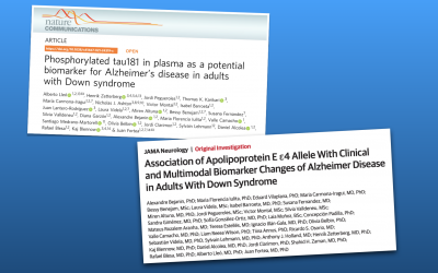 New plasma biomarker to detect Alzheimer's disease in Down syndrome individuals